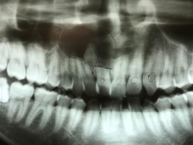 過剰歯逆さ